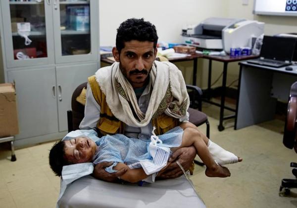 空爆でケガを負った子どもを抱える父親
