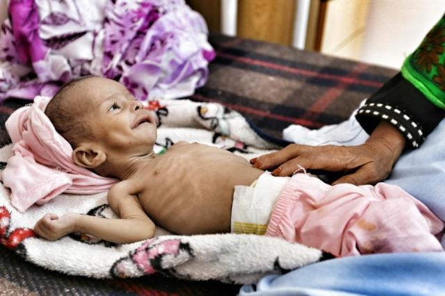 栄養失調に苦しむイエメンの子ども