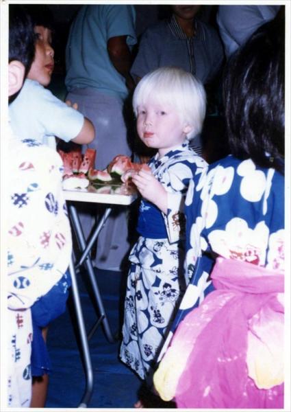 アルビノ・エンターテイナーを名乗る粕谷幸司さんの子ども時代