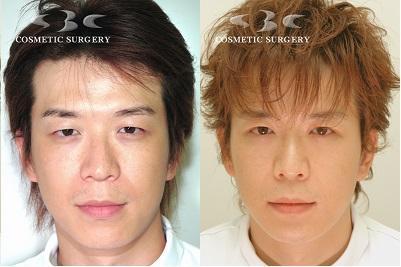 左が整形する前の富田さん。右は整形後(湘南美容外科クリニック提供)