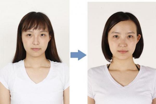 左が整形前の田中その子さん。右は整形後(湘南美容外科クリニック提供)