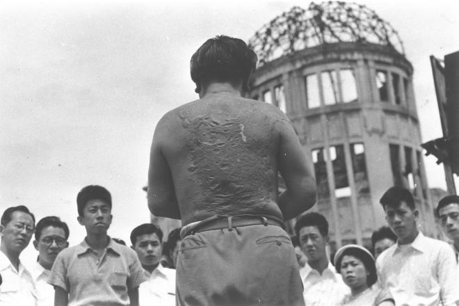 1954年8月、広島市の原爆ドーム(旧商工奨励館)前で、遊覧バスの客に自らのケロイドを見せて被害を説明する吉川清さん