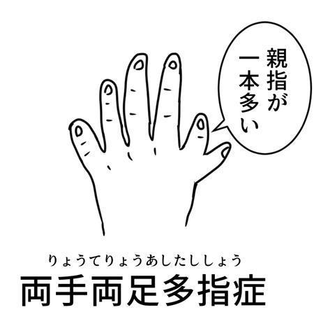アンケートに回答した「両手両足多指症の1歳2か月のお子さんを持つ両親」。結果は記事で。