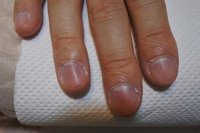 美しくない筆者の爪