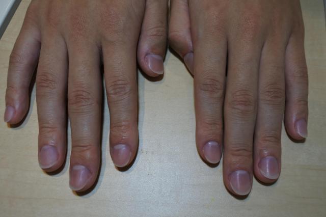 光り輝く爪爪爪