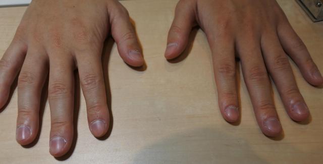 筆者の爪はボロボロ