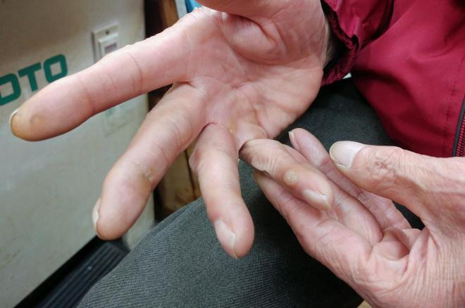 古江勇雄さんの右手小指には「アイロンだこ」が