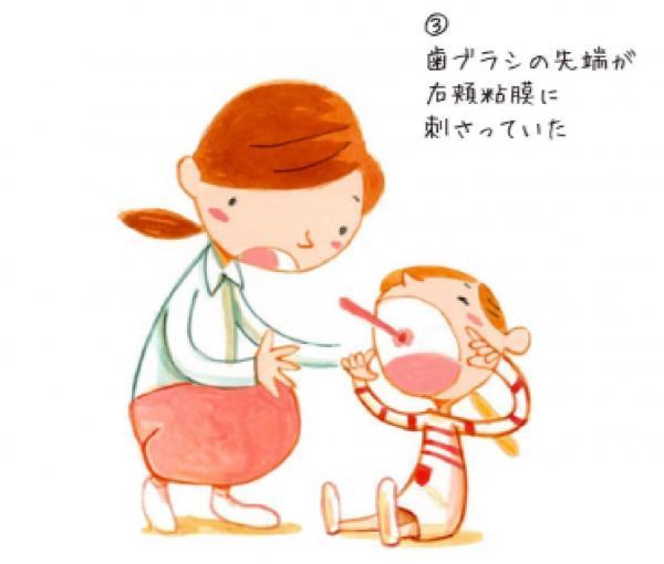 頰の粘膜に歯ブラシが刺さる=NPO法人Safe Kids Japan「危険の科学 歯ブラシによる事故」から