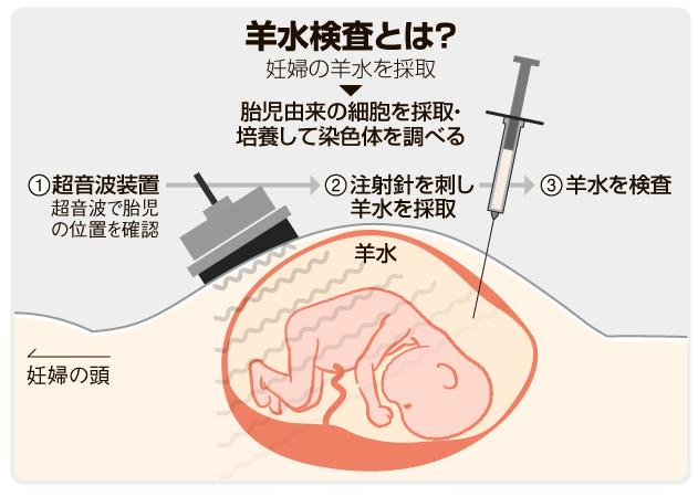 妊婦の羊水を採取して調べる羊水検査