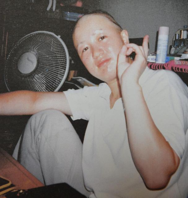 20歳のころ、髪の毛がどんどん抜けていきました=武田さん提供