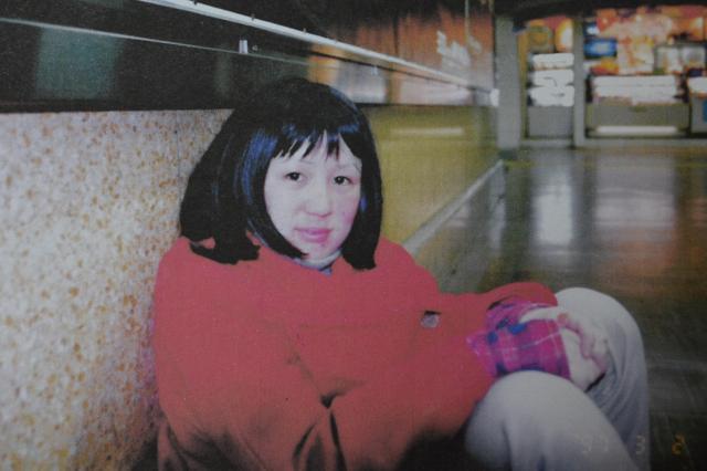 発症後、カツラを着けた武田さん。当時20歳。薬の副作用で顔がはれている=武田さん提供