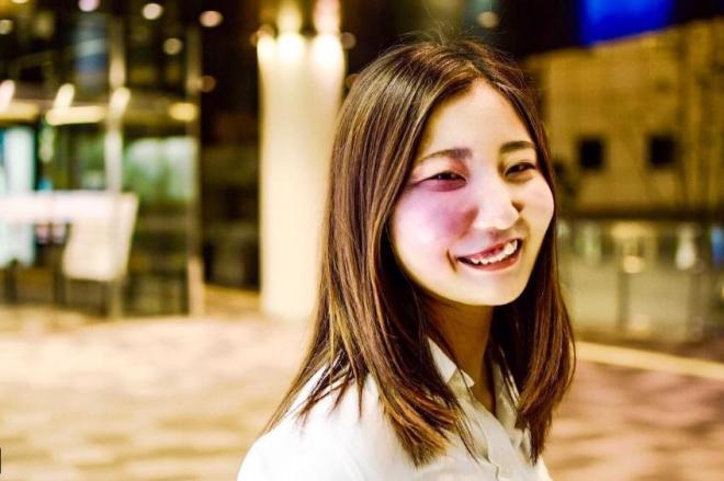 生まれつき顔にあざがある大学生・彩さん