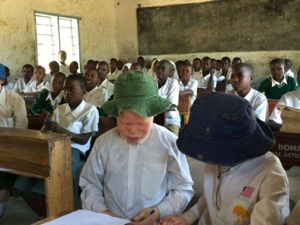 タンザニアのアルビノの子供(前列)。紫外線に弱いため帽子をかぶっていた=2015年