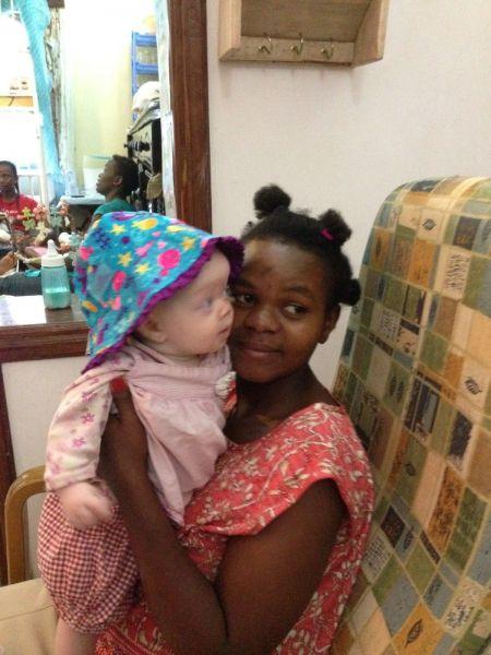 伊藤さんがタンザニアで出会った当時15歳の女性と、アルビノの赤ちゃん
