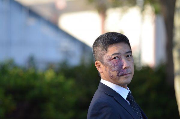 普通とは異なる顔を持つ人たちの自助組織「ユニークフェイス」をつくった石井政之さん