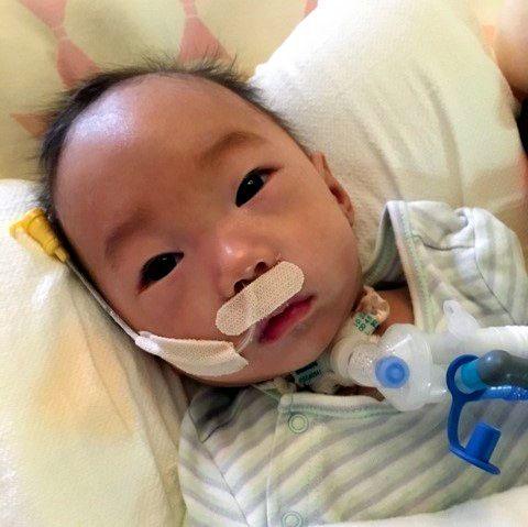 ICUに入院し、気管切開の手術を受けた直後の水谷怜生くん=裕加さん提供