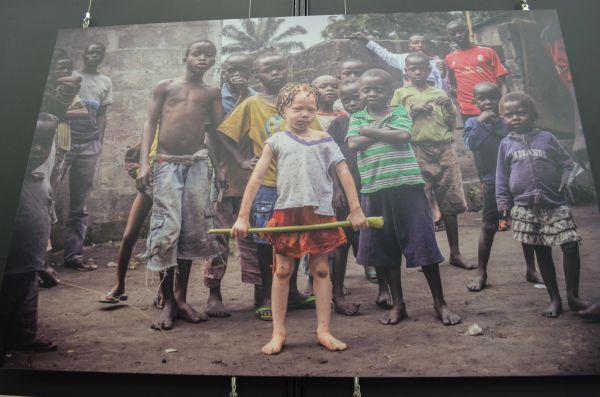 写真家パトリシア・ウィロックさんがアフリカのアルビノの人たちを映した写真展も開かれた
