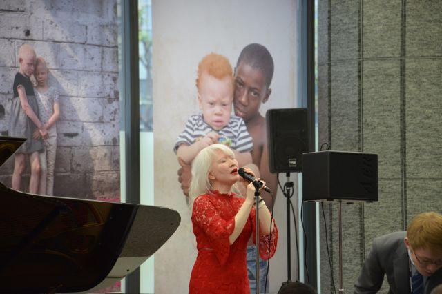 東京アルビニズム会議にあわせ、香港生まれのアルビノ・ジャズシンガー、コニー・チュウさんのライブも開かれた