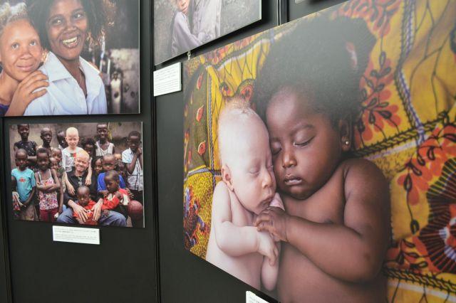東京アルビニズム会議にあわせ、写真家パトリシア・ウィロックさんがアフリカのアルビノの人たちを撮影した写真展も開かれた