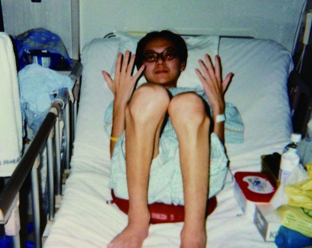 19歳で症状が一気に悪化。体重は32キロまで落ちた