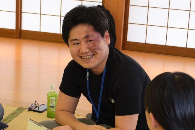 単純性血管腫の三橋雅史さんの写真を参考にしながらメイクを進めました