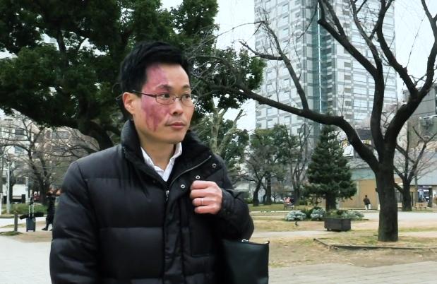公園を歩く岩井記者=山本哲也撮影