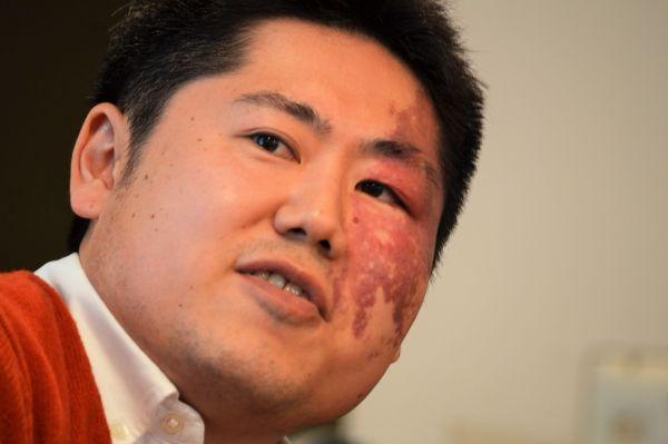 顔の左側に大きなあざがある三橋雅史さん
