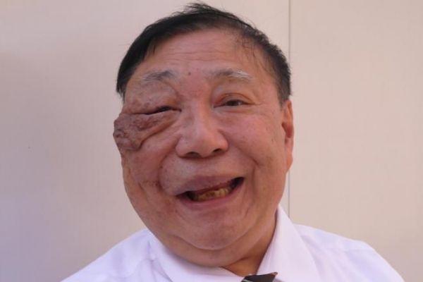 顔に紫色のコブがある藤井輝明さん