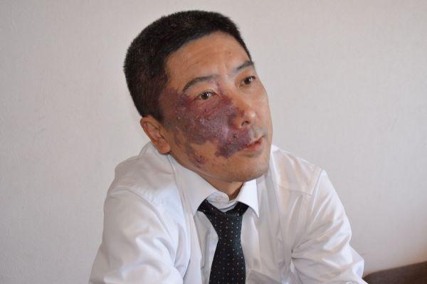 普通とは異なる顔を持つ人たちの自助組織「ユニークフェイス」をつくった石井政之さん。顔の右側にあざがある