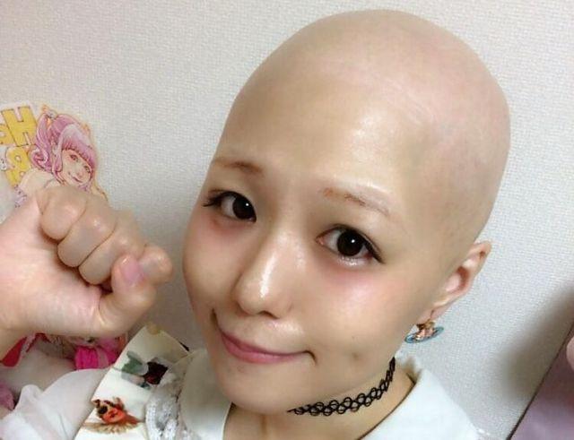 脱毛症で髪を失ったpippiさん(pippiさん提供)