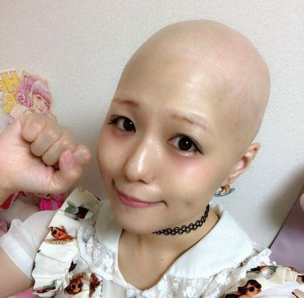 円形脱毛症のアイドル・pippiさん。病気の症状で髪の毛を失い、一時は「女の子をやめなきゃ」とまで思っていたという。