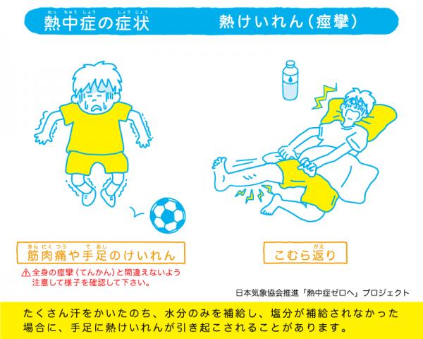 「熱けいれん」の解説イラスト。汗をかきすぎているのに、十分な水分を補給しないと起こる。手足の筋肉がこわばり、震えたり、うまく動かせなかったりするのが特徴。