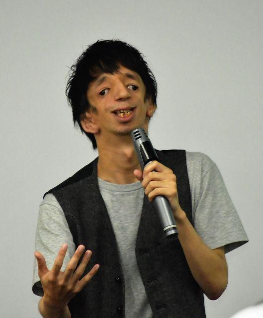 「症状のある顔を、すんなり受け入れる社会になって欲しい」と話す石田さん