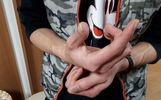 アンケートに答えてくれたベトナム人技能実習生。右手の親指は、日本の実習先で作業中にけがを負い、完治しないまま変形してしまった=堀内京子撮影