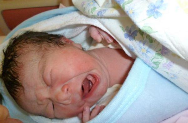 生まれたばかりの岩井建樹記者の長男。右顔の口角が動かないため、表情が左右非対称となる=2010年