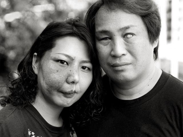 スタージ・ウェーバー症候群の女性。20代でベーチェット病を患い視力に障害がある夫も、女性にアザがあることをわかった上で結婚した(宮本さん提供)