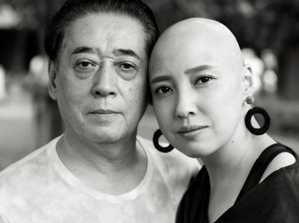 自分で髪の毛を抜いてしまう「抜毛症」の女性と、そのパートナー(宮本さん提供)