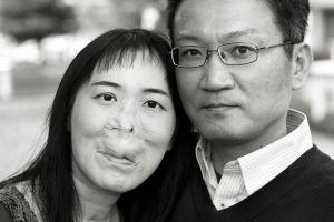 「見た目は特徴的かもしれない、だけど」夫婦の写真展、笑顔ない理由