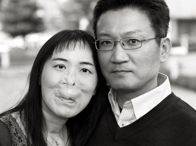 動静脈奇形の河除静香さんと、夫の悟さん(宮本さん提供)