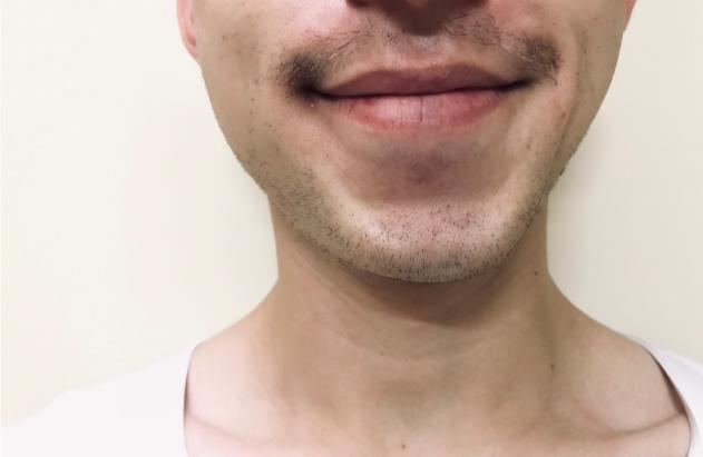口ひげを伸ばしている友人。あまり生えてこないことが悩みだそう……
