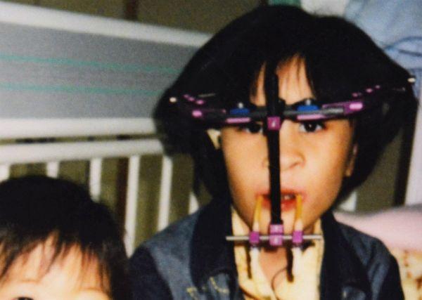 口唇口蓋裂で生まれた小林栄美香さん。子どものころ、医療器具を顔に装着していたことも