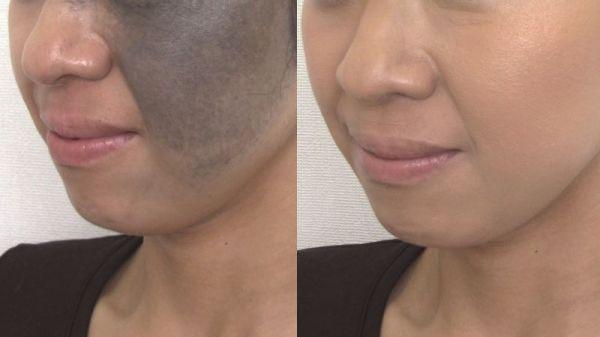 母斑のある女性のメイク前(左)と、メイク後(右)。写真はメディカルメイクアップアソシエーション提供