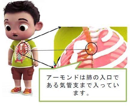 アーモンドでの事故例…消費者庁1月20日のニュースリリース:食品による子どもの窒息・誤嚥事故に注意!から