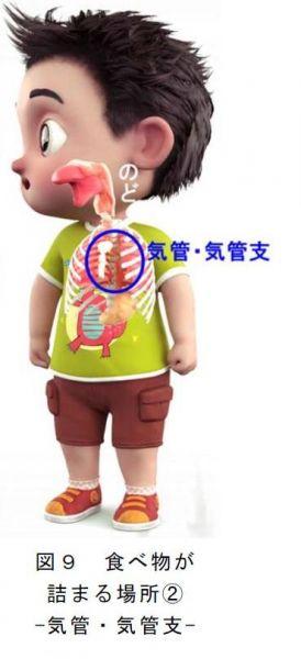 食べ物が詰まる場所②気管・気管支…消費者庁1月20日のニュースリリース:食品による子どもの窒息・誤嚥事故に注意!から