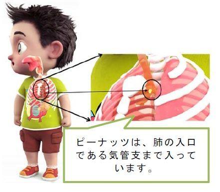ピーナッツでの事故例…消費者庁1月20日のニュースリリース:食品による子どもの窒息・誤嚥事故に注意!から