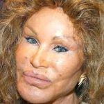 閲覧注意!!整形で顔面が崩壊してしまった人の画像集!!芸能人写真ありのサムネイル画像