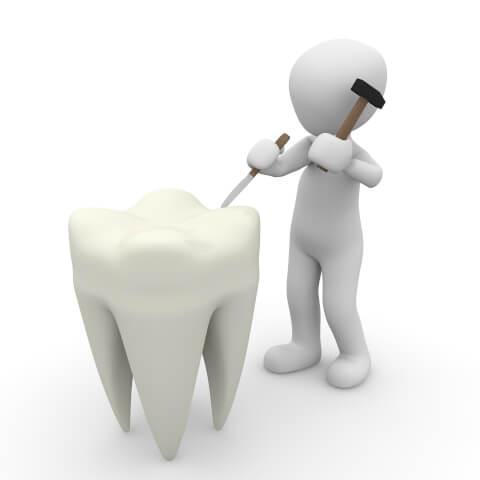 歯を修復するイメージ