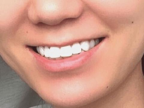 歯 歯磨き粉