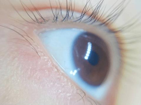 四白眼 三白眼
