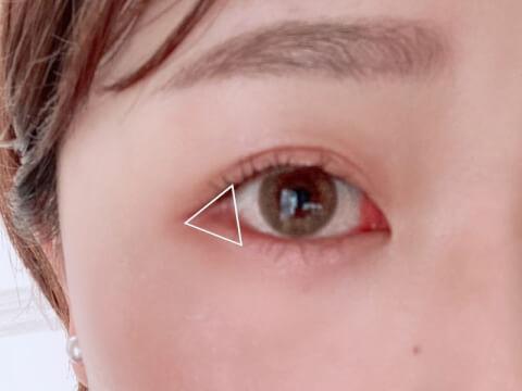 目尻の三角ゾーン
